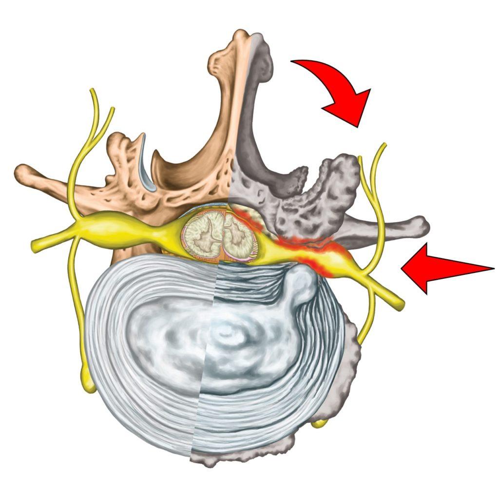 Chiropratik Bild 2